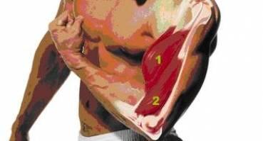 Uszkodzenia mięśnia dwugłowego ramienia