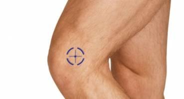 Staw kolanowy i stawy stopy